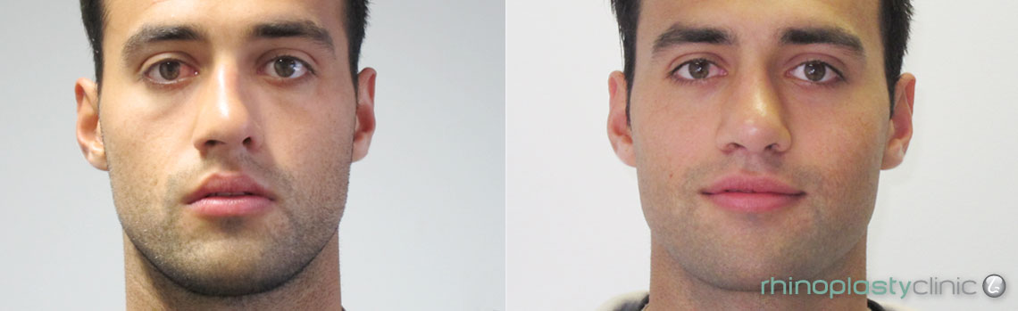 rhinoplasty-before-and-after-pictures