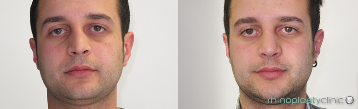rhinoplasty-before-and-after-pictures-male