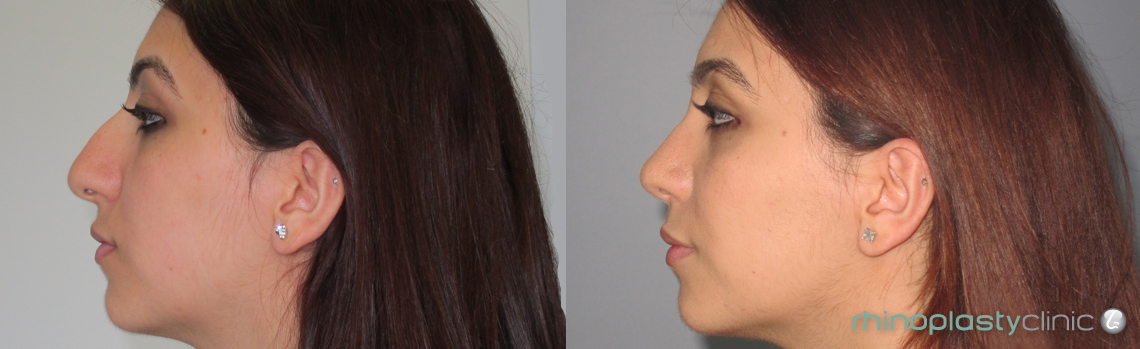 rhinoplasty-before-and-after-pictures-female